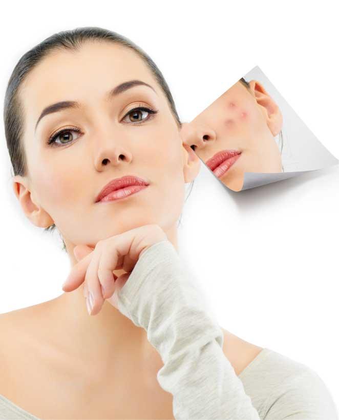 Brentwood Dermatology » Microneedling